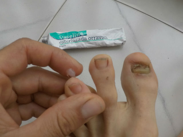 Consejos para aplicar vaselina para correr
